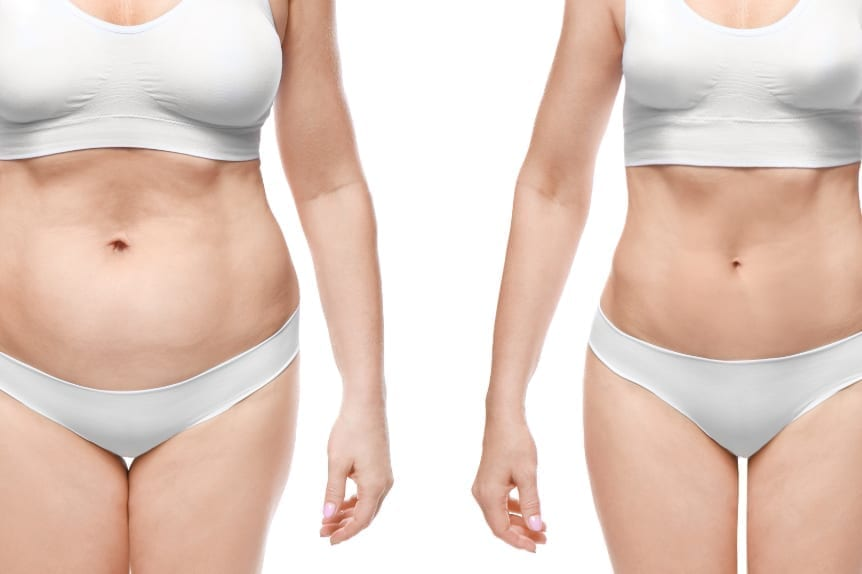 BodyTite Pro at Skin Solutions - Image of before and after