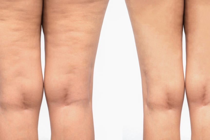 Contoura offered at Skin Solutions - Before and after image of a woman's lefts contoured.