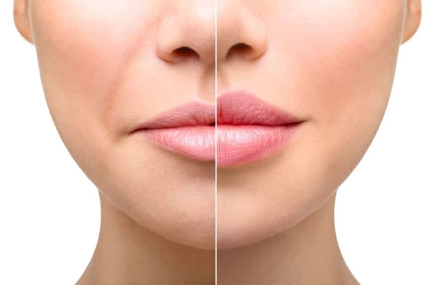 Fillers offered at Skin Solutions - Image of woman - before and after lip fillers.