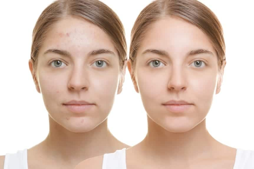 Surgical & Acne Scarring at Skin Solutions before and after image of a young girl's face.