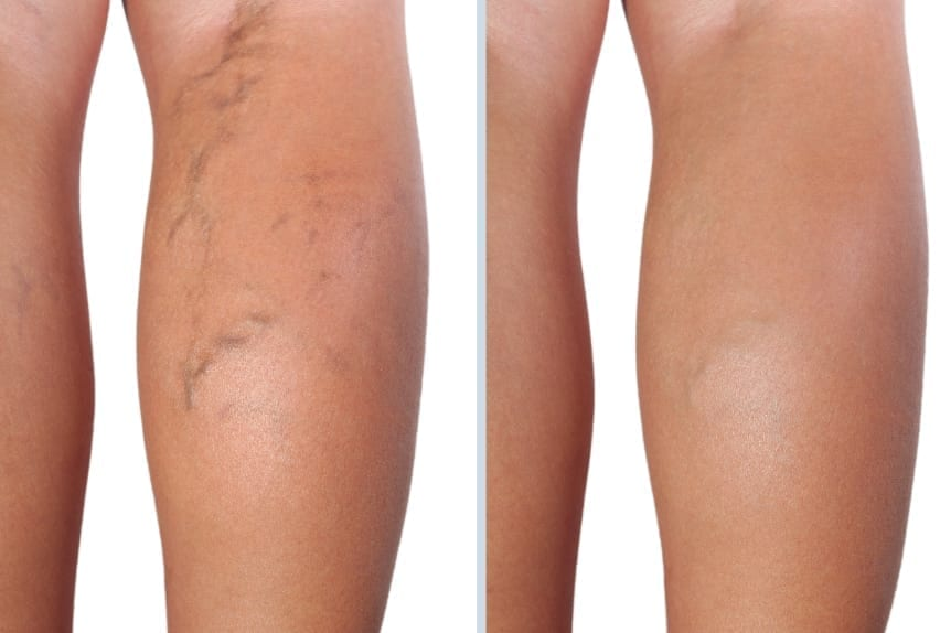 Before and after calfs with vein therapy