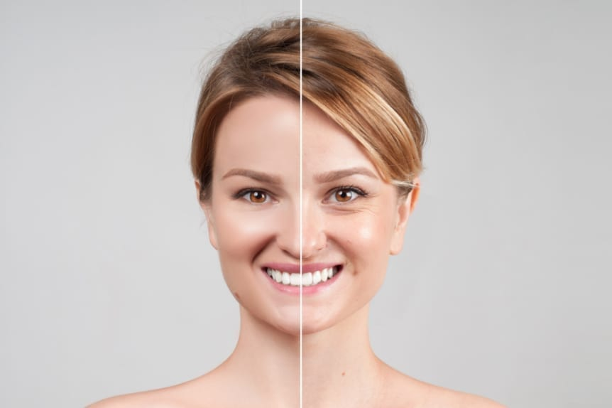 xeomin_botox offered at Skin Solutions - before and after image - beautiful blond woman's face